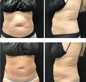 Two photos of a patient's stomach with excess fat and pudginess, from the front and the side, and two more photos of the same patient's stomach area after treatment with significantly less pudginess.